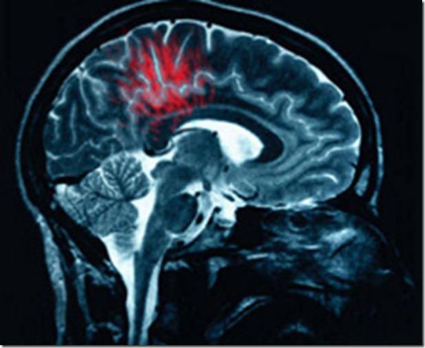 cerebro tumores