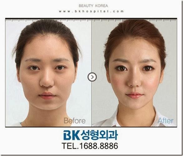 korean-plastic-surgery-17