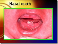 natal teeth medicalshow