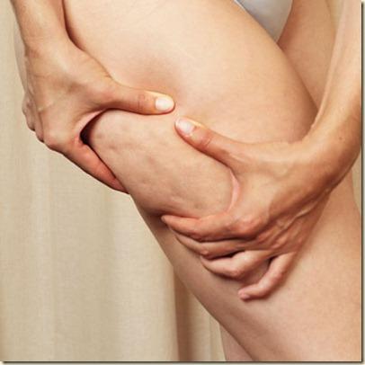 tratamiento de la celulitis-j