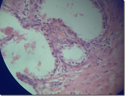 Cuboidal epithelium magnified