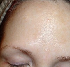 skin before Rodan   Fields Acute Care Regimen_2