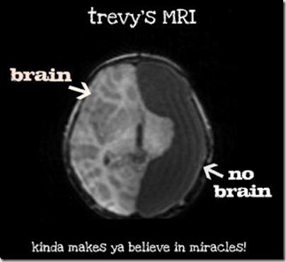 trevys MRI