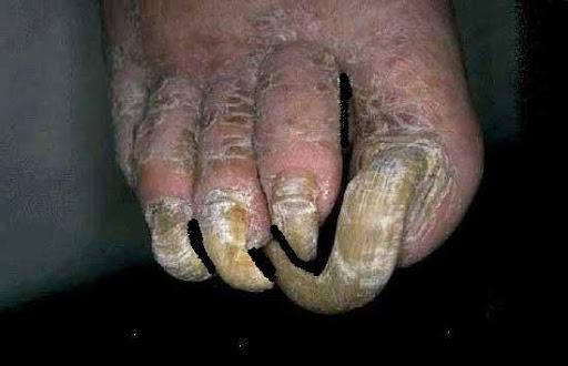 Gross Toe Nail...