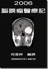 2006-07-腦膜瘤-1