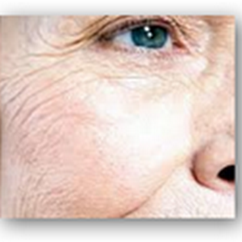 Stem Cell Trial to Begin in 12 Months For New Process to Reduce or End Wrinkles–Using Blood Cells Instead of Fat Cells