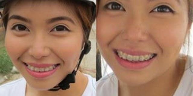 old braces
