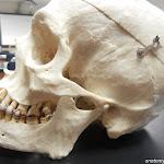 skull_mandible.jpg