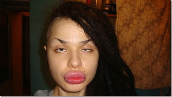 worlds-largest-lips-11
