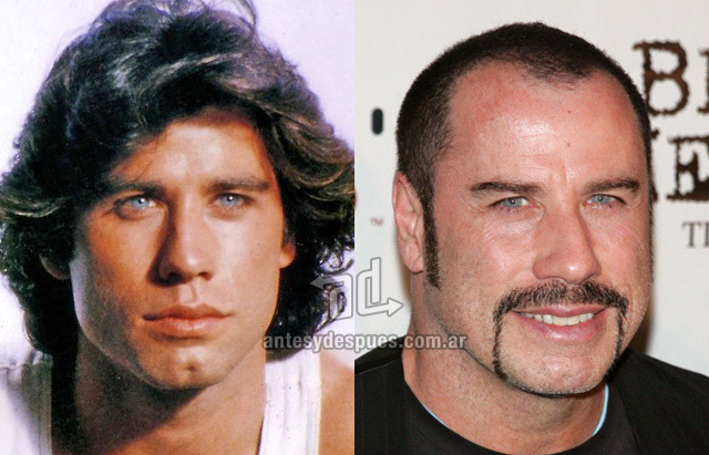 Hair Loss Before &amp; After of  John Travolta