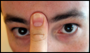 Cara mengatasi Hidung Tersumbat secara Cepat