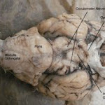 brain_dissect05.jpg