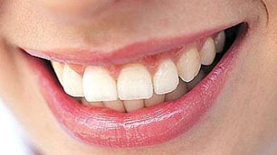 tips-menjaga-kesehatan-mulut