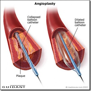 Angioplast