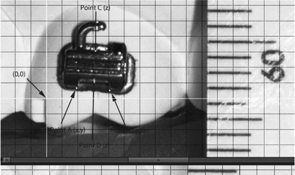 Colagem indireta wendel shibasaki ortodontia contemporanea marlos loiola 1