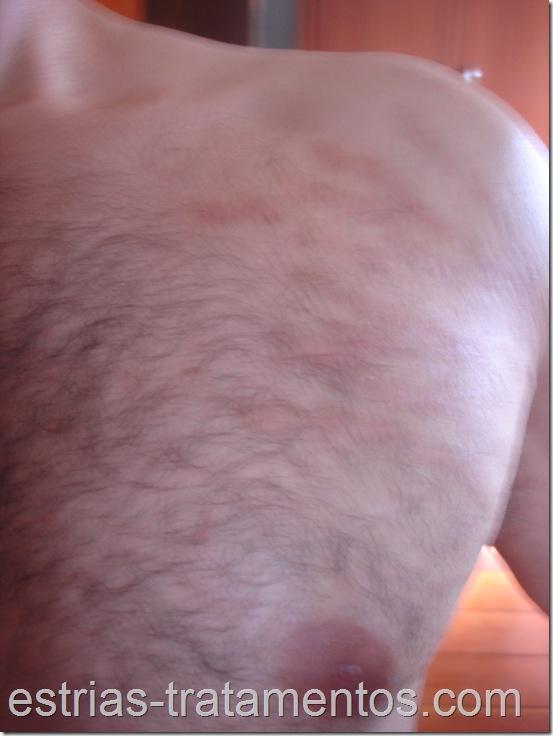 Estrias brancas do peito e ombro esquerdo cicatrizadas após a primeira sessão do laser de CO2 fracionado.