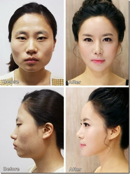 korean-plastic-surgery-20