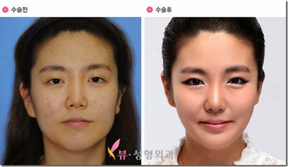 korean-plastic-surgery-5
