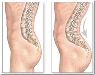 Lordosis - hip stretches to prevent a lower belly from poor posture