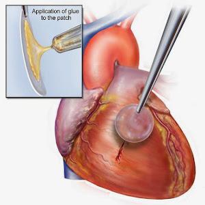 新型胶水修复受损心脏