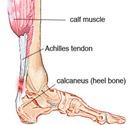 Achilles-rupture1