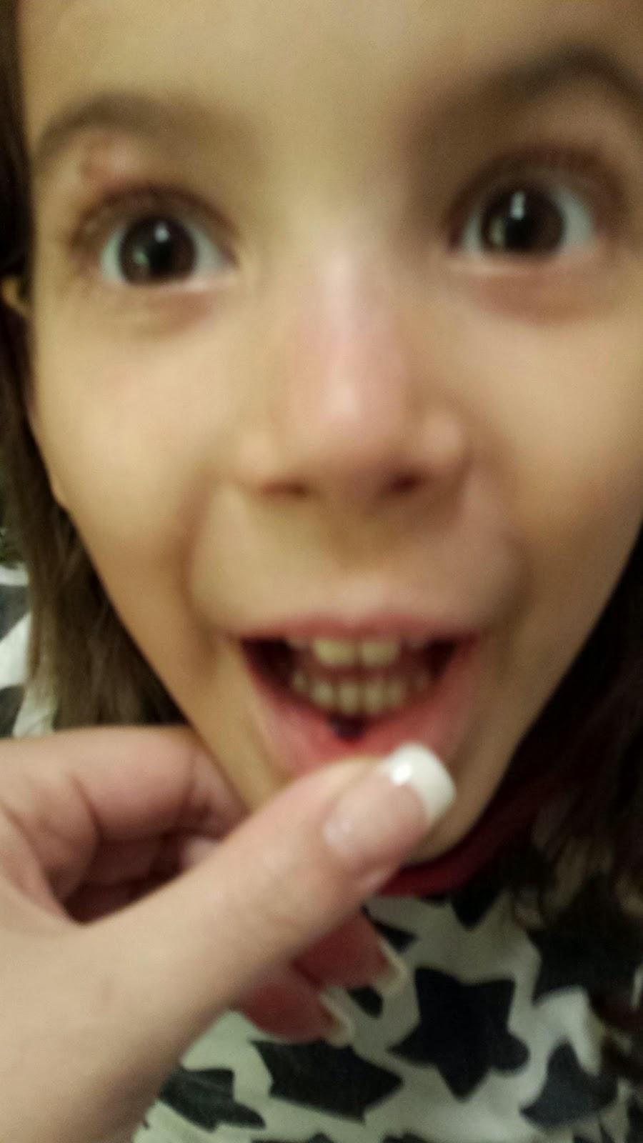 Blodblåsor i munnen