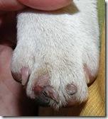 deformidade de unhas
