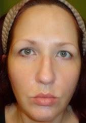 skin before Rodan   Fields Acute Care Regimen_1
