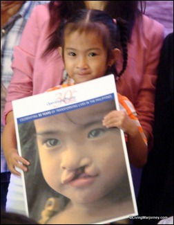 Operation Smile Beneficiary
