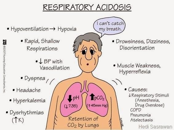 15 Penyebab Asidosis Respiratorik