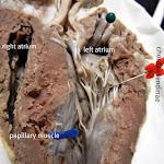 heart_pinned_closer_labeled.JPG