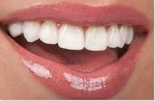 Want Whiter Teeth 5 Remedies to Restore Your Smile