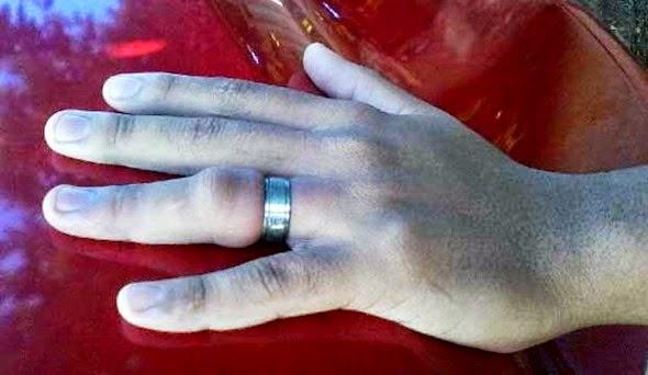 anel preso