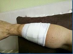 Der Arm zwei Stunden nach dem Chemieunfall