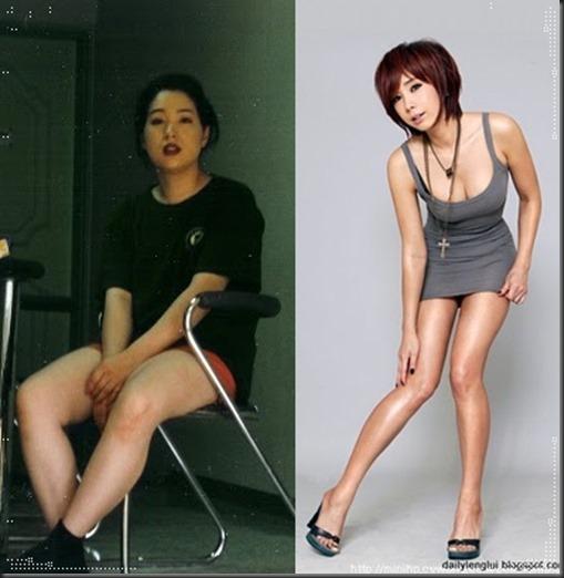 jung da yeong before after1