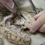 brain_dissect08.jpg