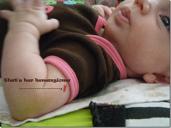 hemangioma edit