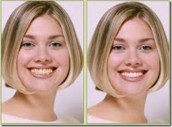 blanqueamiento dental facil rapido y barato