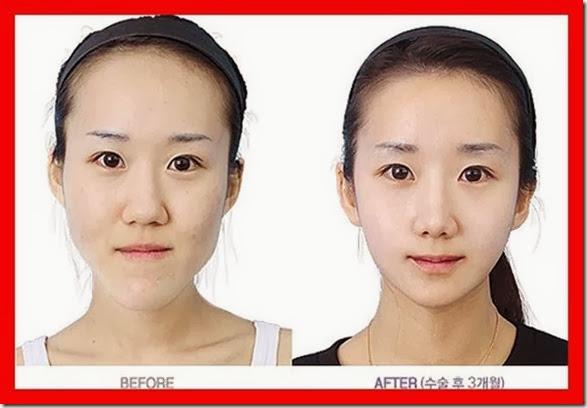 korean-plastic-surgery-29