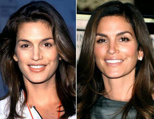 Celebrity-Cindy-Crawford-Plastic-Surgery.jpg