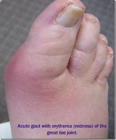 gout_medicalshow