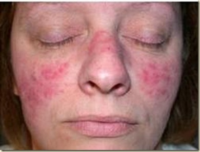acne (2)