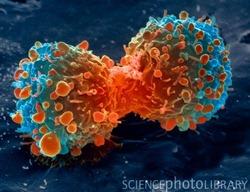 Células tumorais