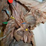 fetal_pig_heart_vessels.JPG