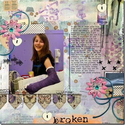 Brenna_brokenarm_1-13-14