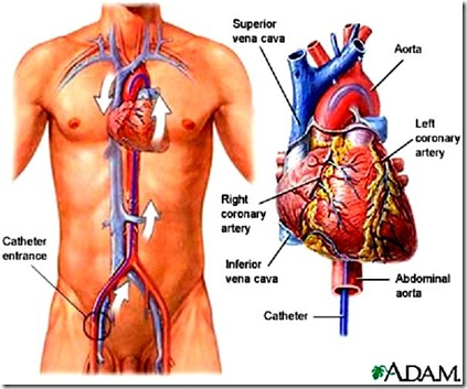 Heart Cath Procedure