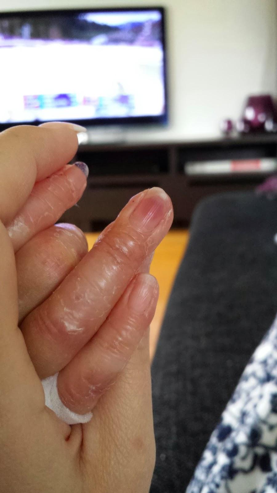 klämt finger vård