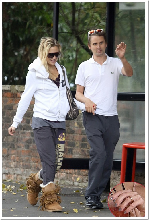 Kate Hudson and her fiancé Matt Bellamy with wedding band