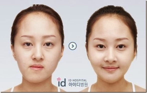 korean-plastic-surgery-6
