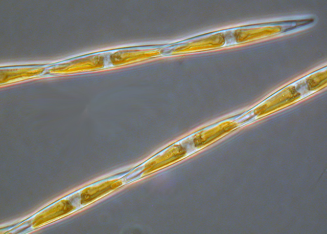 Microscope view of the diatom Pseudo-nitzschia. Laboratory studies show that when acidity (or pH) is lowered, Pseudo-nitzschia cells produce more domoic acid toxin toxin. Photo: Cal-PReEMPT